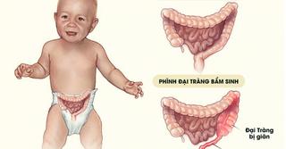 Cứu bé gái sinh non bị bệnh lý phình đại tràng bẩm sinh