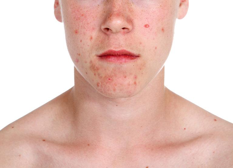 Nguyên nhân gây dị ứng da thường gặp
