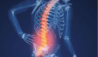Cảnh báo những triệu chứng thoái hóa cột sống thắt lưng