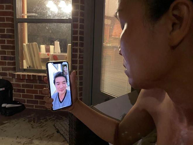 Ca sĩ Hồng Ngọc công khai cận cảnh gương mặt sau khi bị bỏng cấp độ 2