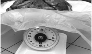 Phát hiện khối u nặng 6kg trong ổ bụng người đàn ông