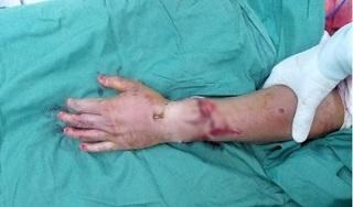 Phẫu thuật thành công cánh tay bị chém lìa sau va chạm giao thông