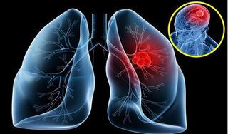 Những món ăn cần tránh khi bị ung thư phổi