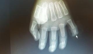 Bé trai 17 tháng tuổi nghịch dao bị đứt rời đốt ngón tay
