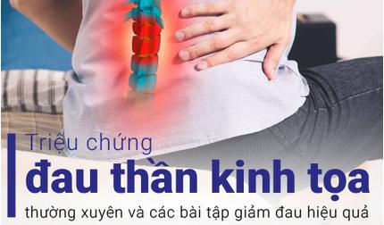 Triệu chứng đau thần kinh tọa và các bài tập giảm đau hiệu quả