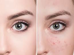 Cách điều trị mụn ẩn dưới da không phải ai cũng biết