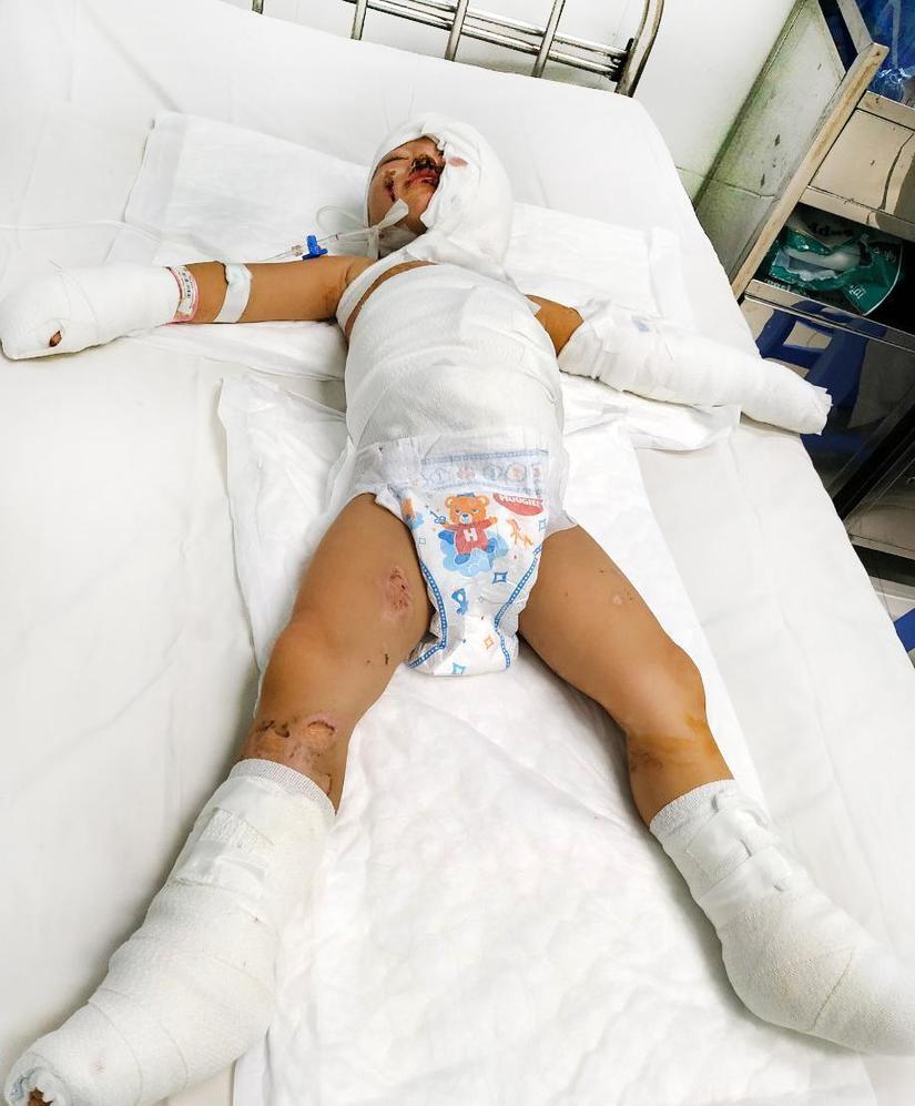 Xót xa hình ảnh 2 bé trai bỏng nặng trong vụ ném bom xăng Bình Dương