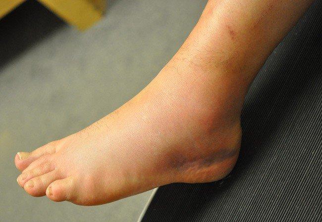 Làm cách nào để điều trị bong gân mắt cá chân?