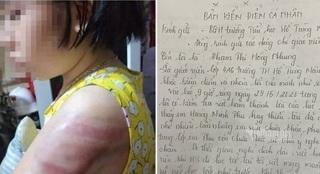 Bản kiểm điểm của cô giáo đánh học sinh bầm tím ở Nam Định viết gì?