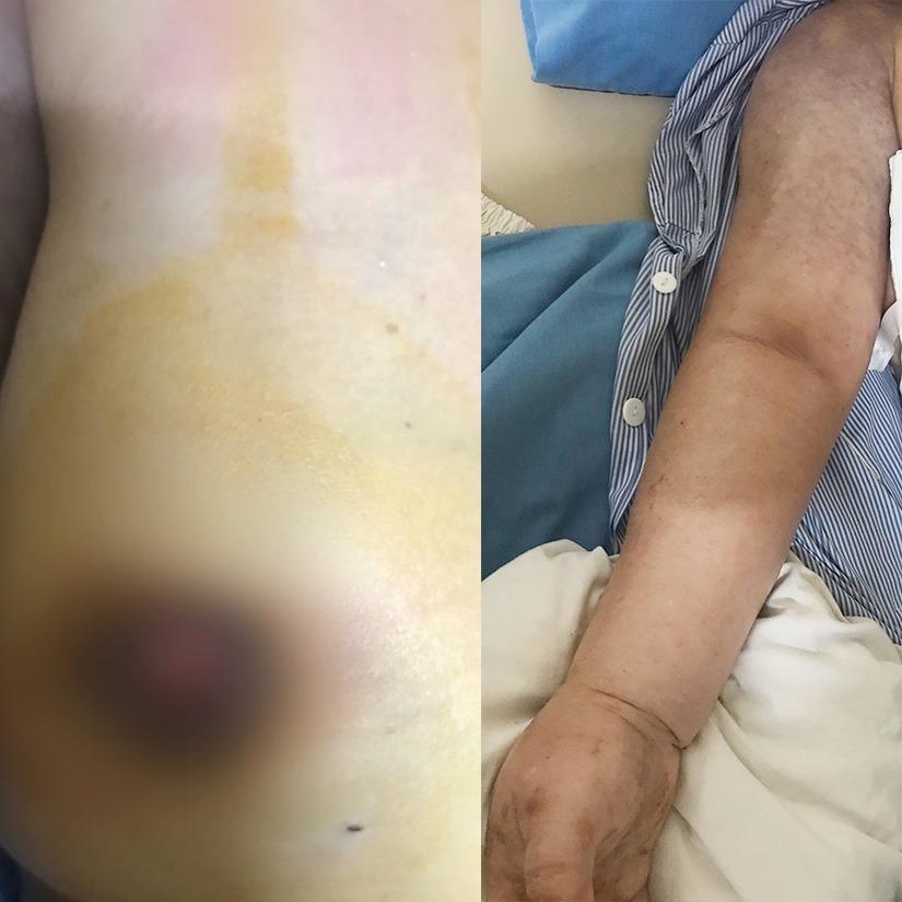 Đắp thuốc nam chữa ung thư vú, người phụ nữ bị di căn xương giai đoạn cuối