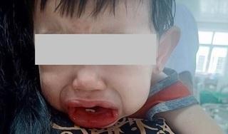 Bé 2 tuổi uống nhầm chất tẩy rửa, bác sĩ chỉ cách cấp cứu đúng nhất