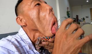 Chàng trai 'mặt quỷ' và tia hy vọng le lói sau 15 năm bị người đời xa lánh
