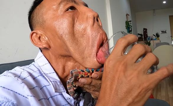 Chàng trai mặt quỷ và tia hy vọng len lói sau 15 năm bị xã hội xa lánh
