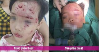 Sang nhà hàng xóm chơi, bé gái 3 tuổi bị chó cắn rách mặt