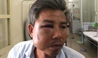 Khởi tố chủ quán cà phê đánh 'bầm dập' nhân viên công ty cây xanh