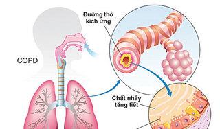 'Thần dược' đẩy lùi bệnh phổi tắc nghẽn