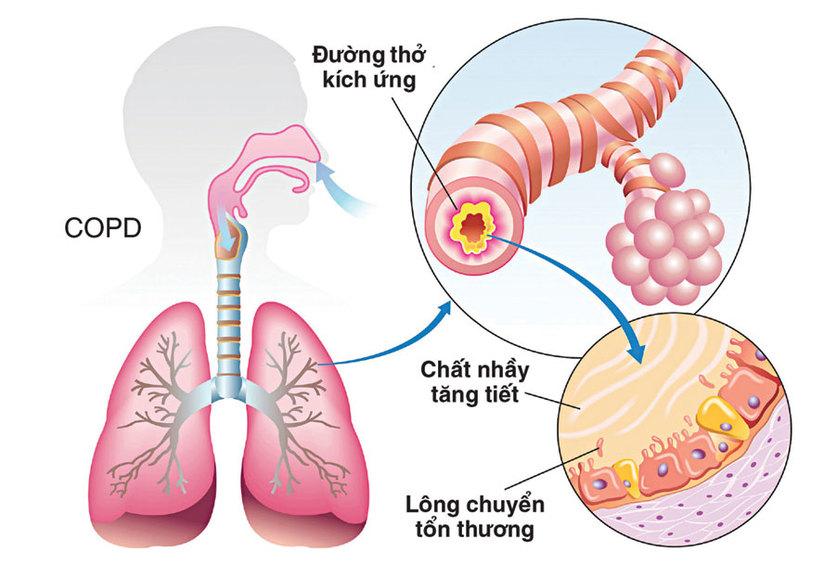 Các thần dược đẩy lùi bệnh phổi tắc nghẽn
