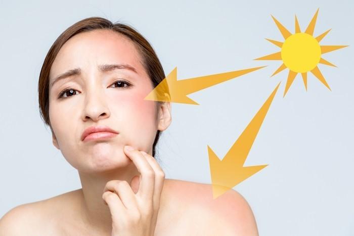 Bỏ ngay 5 thói quen xấu gây tổn thương nghiêm trọng cho làn da của bạn