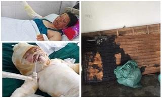 Vụ cháy điều hòa cả nhà bị bỏng nặng: Bé gái 9 tháng tuổi cũng qua đời