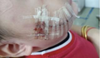 Bé 2 tuổi bị chó nhà cắn tổn thương nặng ở mặt
