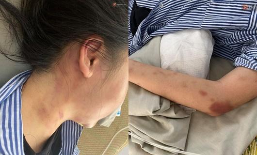 Cử lực lượng đảm bảo an toàn cô gái bị đánh đập suốt 2 giờ ở Yên Bái