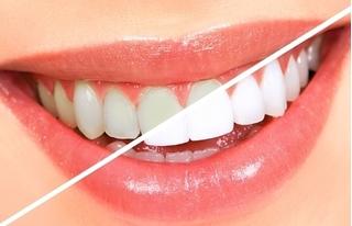 4 mẹo đơn giản giúp bạn sở hữu hàm răng trắng sáng trong 'tích tắc'