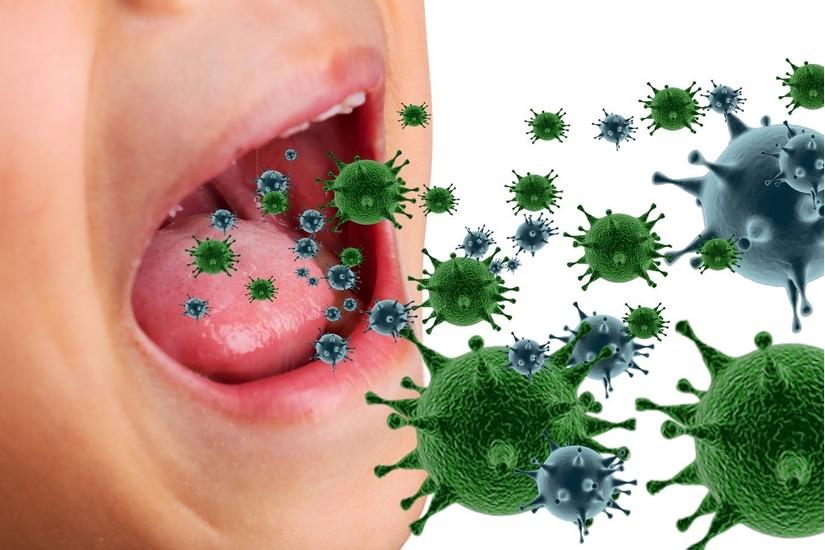 viêm mũi họng cấp