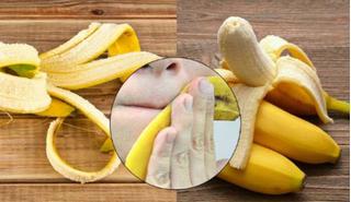 5 công dụng tuyệt vời từ vỏ chuối có thể bạn chưa biết