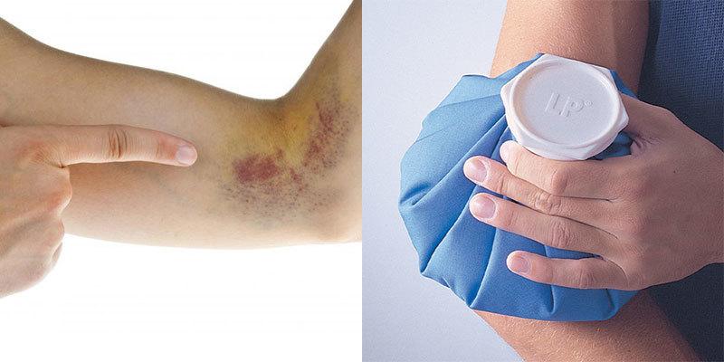 Chỉ với cách này, vết bầm tím trên cơ thể được loại bỏ nhanh chóng