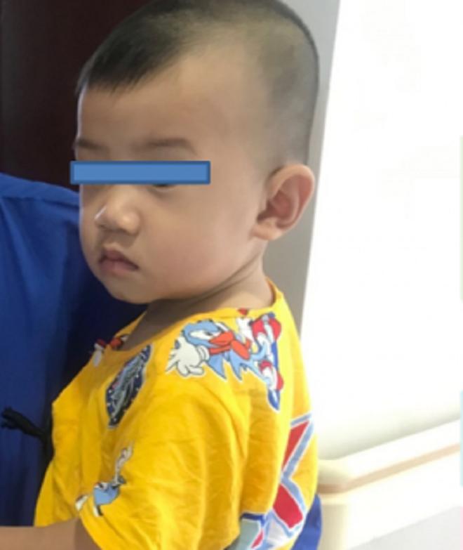 Bé 10 tháng tuổi liên tục nôn ói, cháy máu miệng vì nuốt mảnh kính vỡ 2