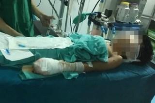Thiếu niên Quảng Trị nát tay, nguy cơ mù cả 2 mắt sau tiếng nổ lớn
