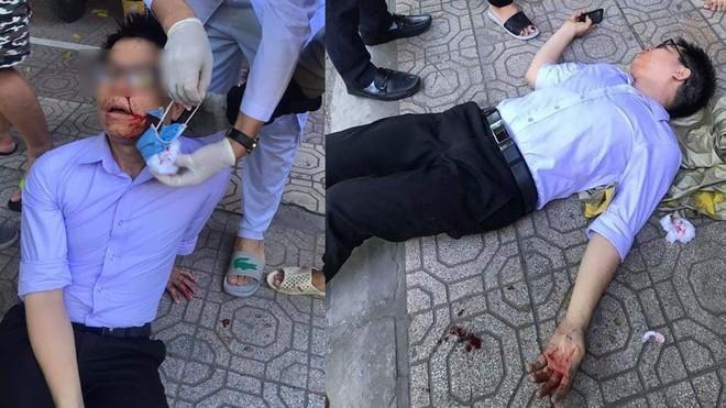Cán bộ tư pháp Thái Bình bị hành hung trên đường sau khi tố cáo cấp trên