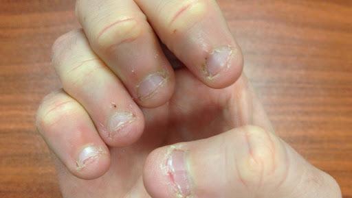 Dấu hiệu bất thường trên móng tay có thể là triệu chứng của bệnh tật