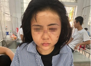 Lộ mối quan hệ thực sự giữa gã xăm trổ và cô gái bị đánh dã man ở Yên Bái