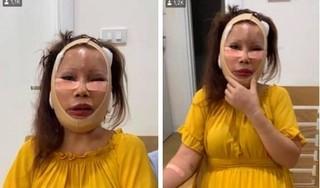 Phát hoảng với diện mạo mới của cô dâu 62 tuổi sau 3 ngày 'dao kéo'
