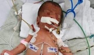 Bà ngoại dùng kéo cắt rốn, bé sơ sinh bị uốn ván nguy kịch