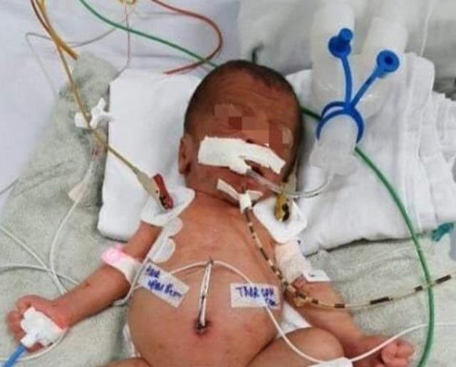 Bà ngoại dùng kéo cắt rốn, bé sơ sinh nhiễm uốn ván nguy kịch