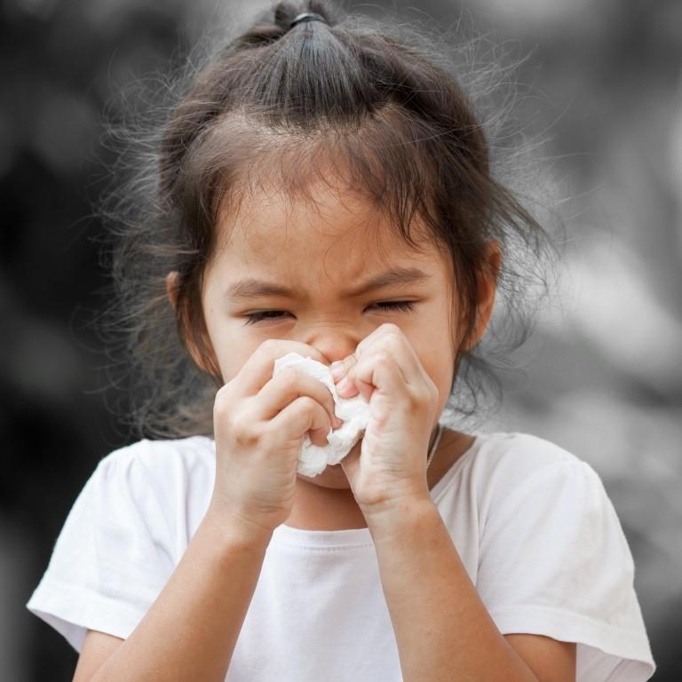 sổ mũi ở trẻ