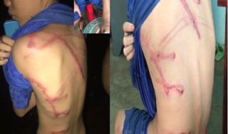 Cha đẻ dùng dây điện đánh tím lưng con trai 12 tuổi