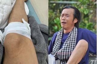 Bị thương ở chân, Hoài Linh tiết lộ 'kẻ gây án' khiến fan bất ngờ