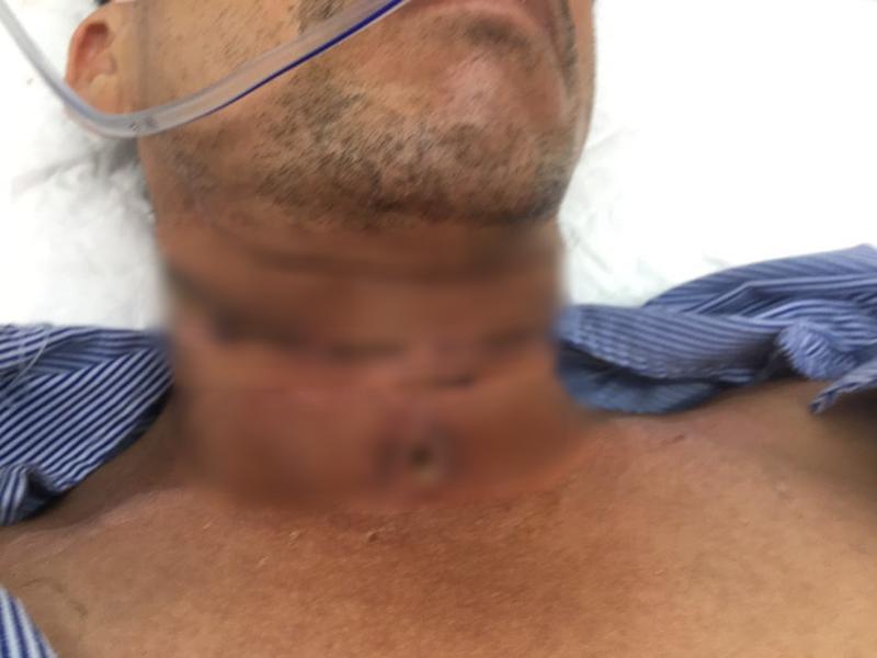 Người đàn ông nguy kịch do bị dây diều cắt đứt khí quản