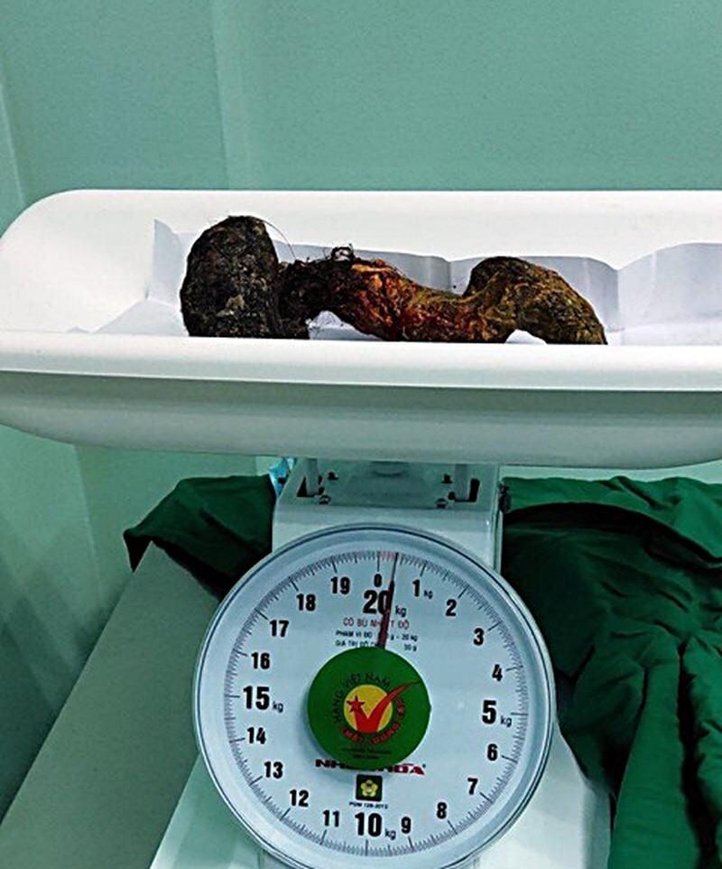 Lấy búi tóc nặng 0,5 kg trong bụng bệnh nhi 10 tuổi ở Bình Thuận