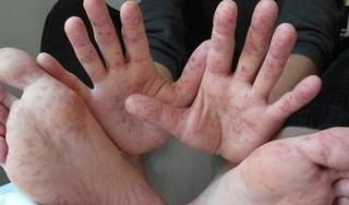 Số ca mắc bệnh tay chân miệng tăng nhanh, nhiều ca không rõ nguồn lây