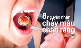 Loại bỏ ngay 8 nguyên nhân gây chảy máu chân răng