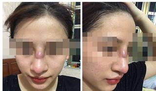Cô gái Quảng Ninh suýt thủng mũi sau khi 'dao kéo' tại spa