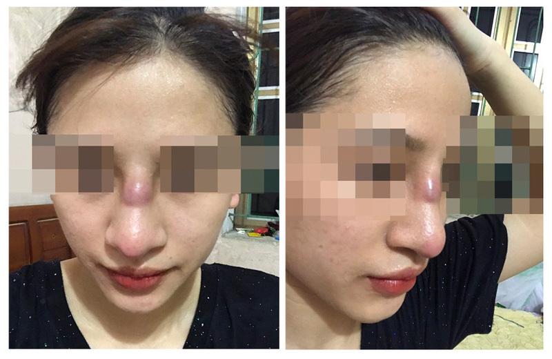 Cô gái 19 tuổi suýt mất mũi sau sau phẫu thuật nâng mũi bằng phương pháp đặt sụn silicon tại spa