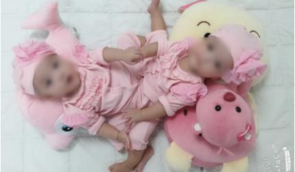 Sắp phẫu thuật tách cặp song sinh dính nhau cực kỳ hiếm gặp ở Việt Nam