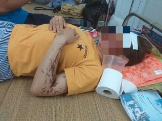 'Nữ quái' 9X tạt axit nhân viên tiệm vàng để cướp tiền nhận 18 năm tù