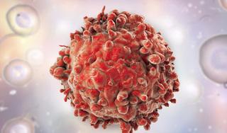Phát hiện chất béo ngay trong cơ thể con người có khả năng tiêu diệt tế báo ung thư