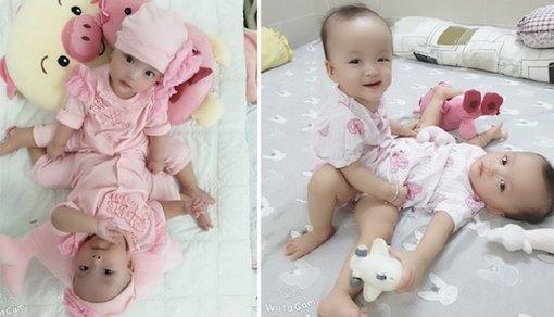 Những hình ảnh hai bé song sinh dính liền trước ca phẫu thuật